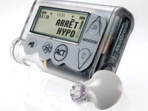 La mesure continue du glucose (MGC) - La pompe à insuline, parlons-en !
